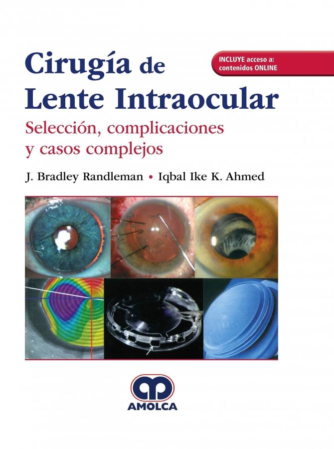 Cirugía del Lente Intraocular