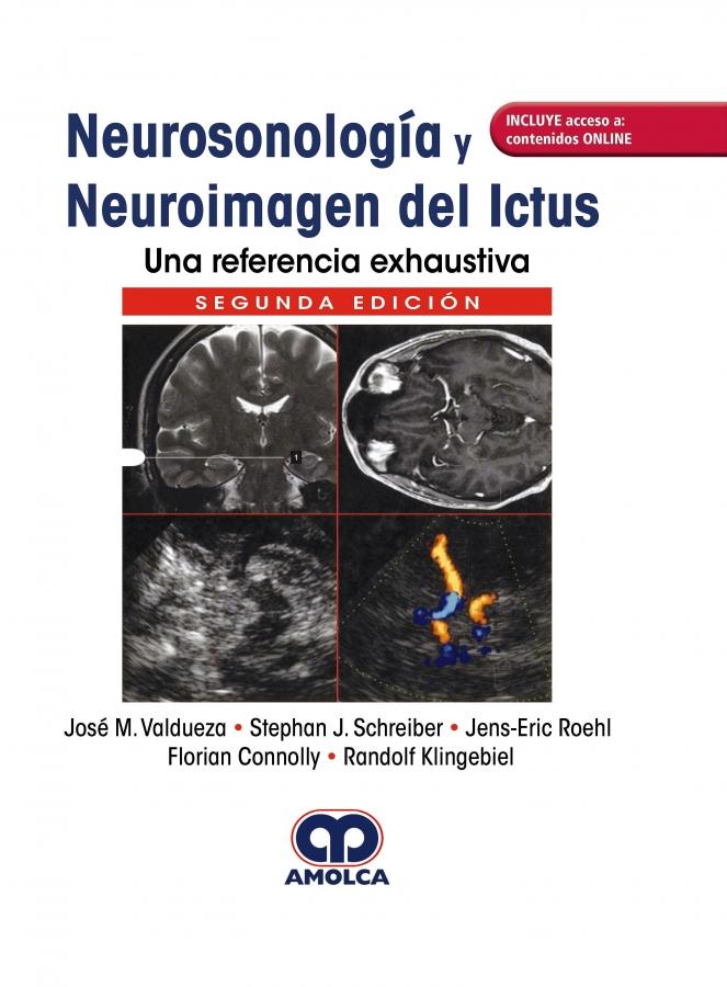 Neurosonología y Neuroimagen ICTUS