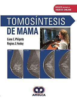 Tomosíntesis de Mama + Videos Online