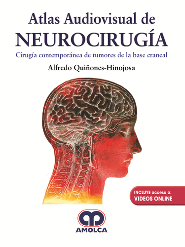 Atlas Audiovisual de Neurocirugia
